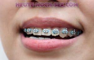 Hast du Bock auf eine frau mit Zahnspange?